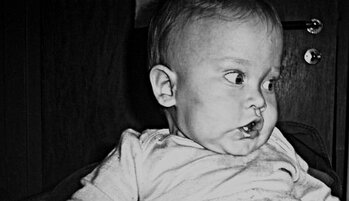 Redsel hos det premature barnet